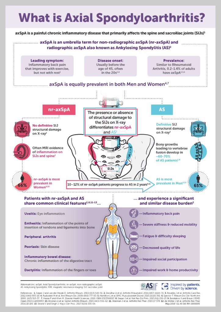 V7 349387 What is axial SpA Infographic A4 JPEF 23.07.2019